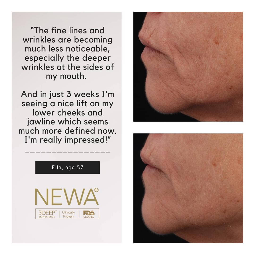 NEWA before and after